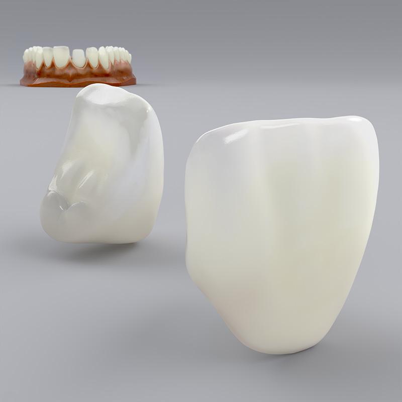 COMPLEO Krone Lithium Silikat/Disilikat